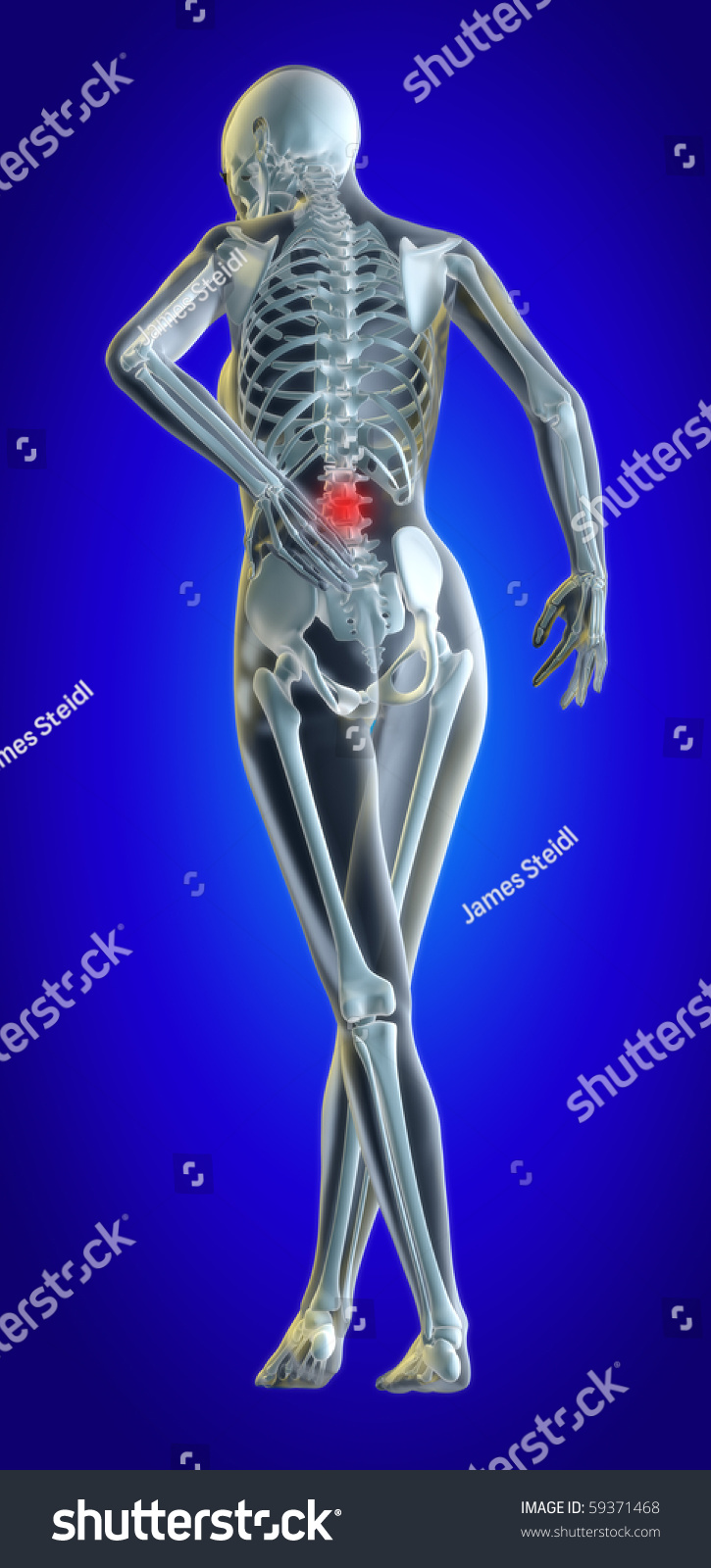 3 D Illustrated File Womans Lower Back Stock Illustration Royalty
