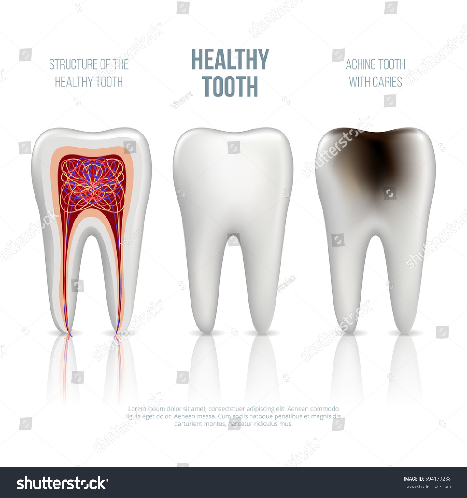 Set Realistic White Healthy Tooth Real Stock Vector (Royalty Free ...