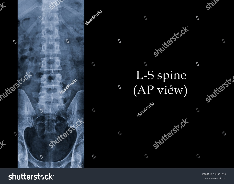 Film Xray Lumbar Spine Ls Spine Stock Photo Edit Now 594501008