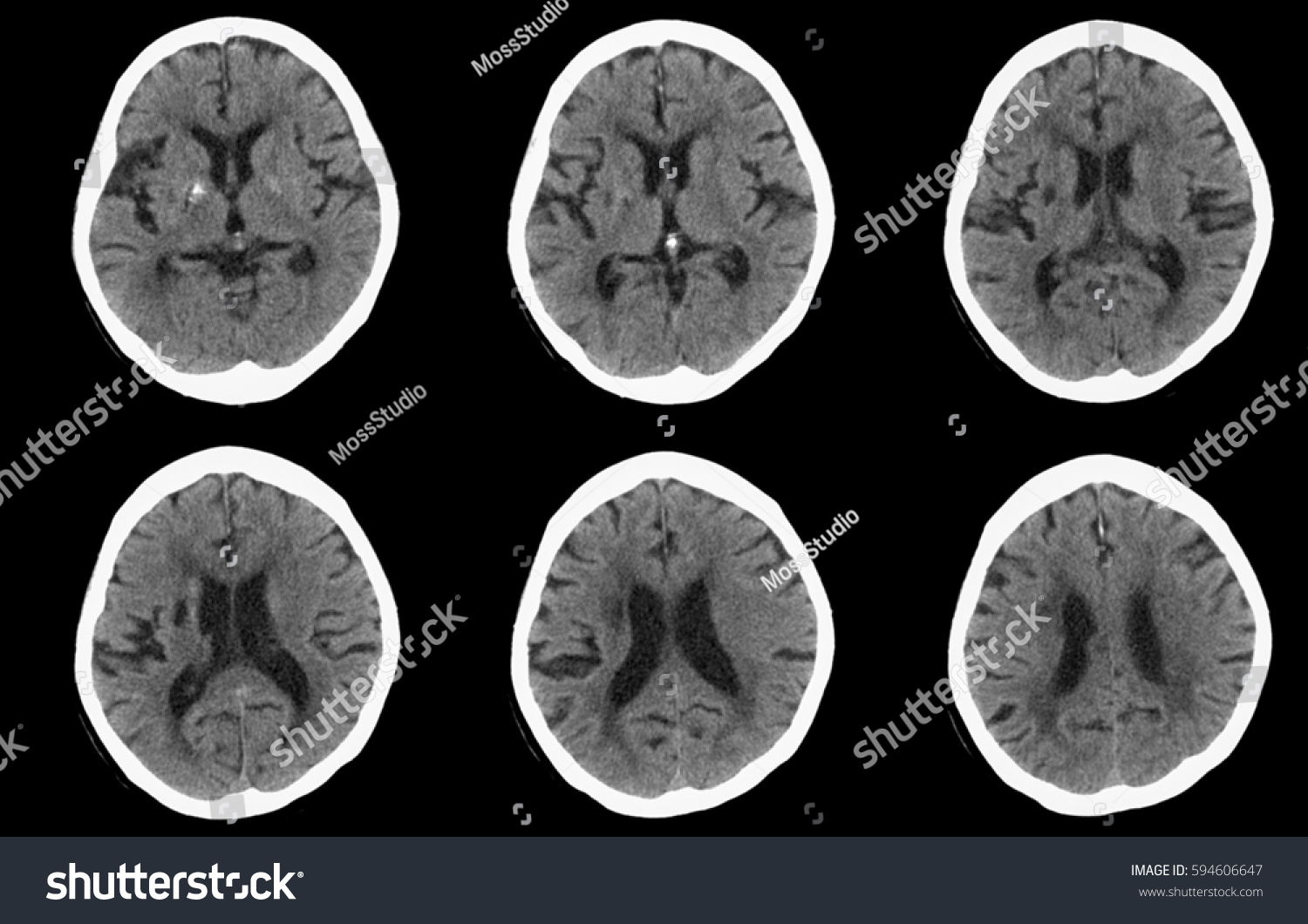 Computed Tomography Ct Brain Old Lacunar Stock Photo Edit Now