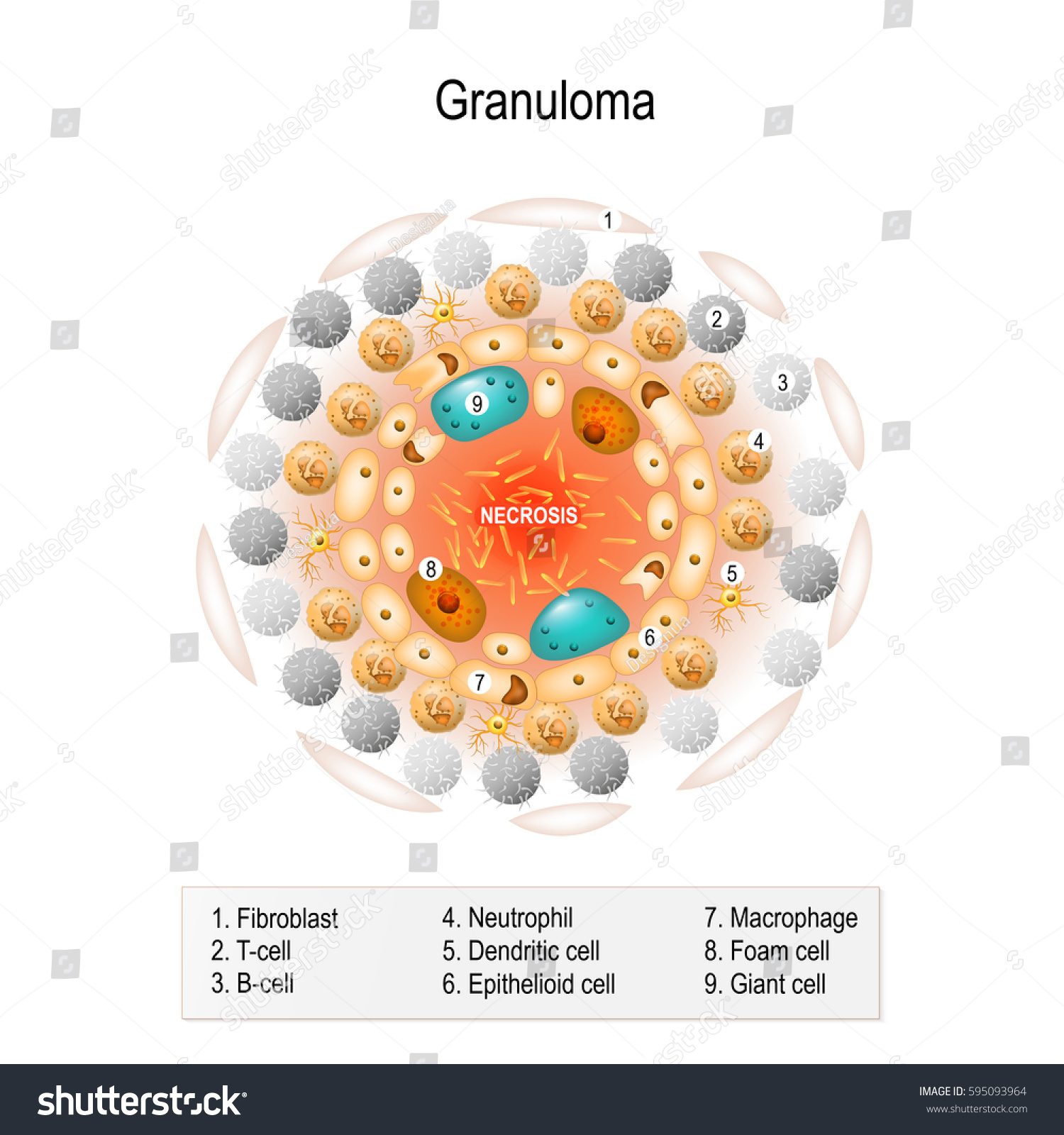 Cell Structure Tuberculous Granuloma Human Anatomy Stock Vector
