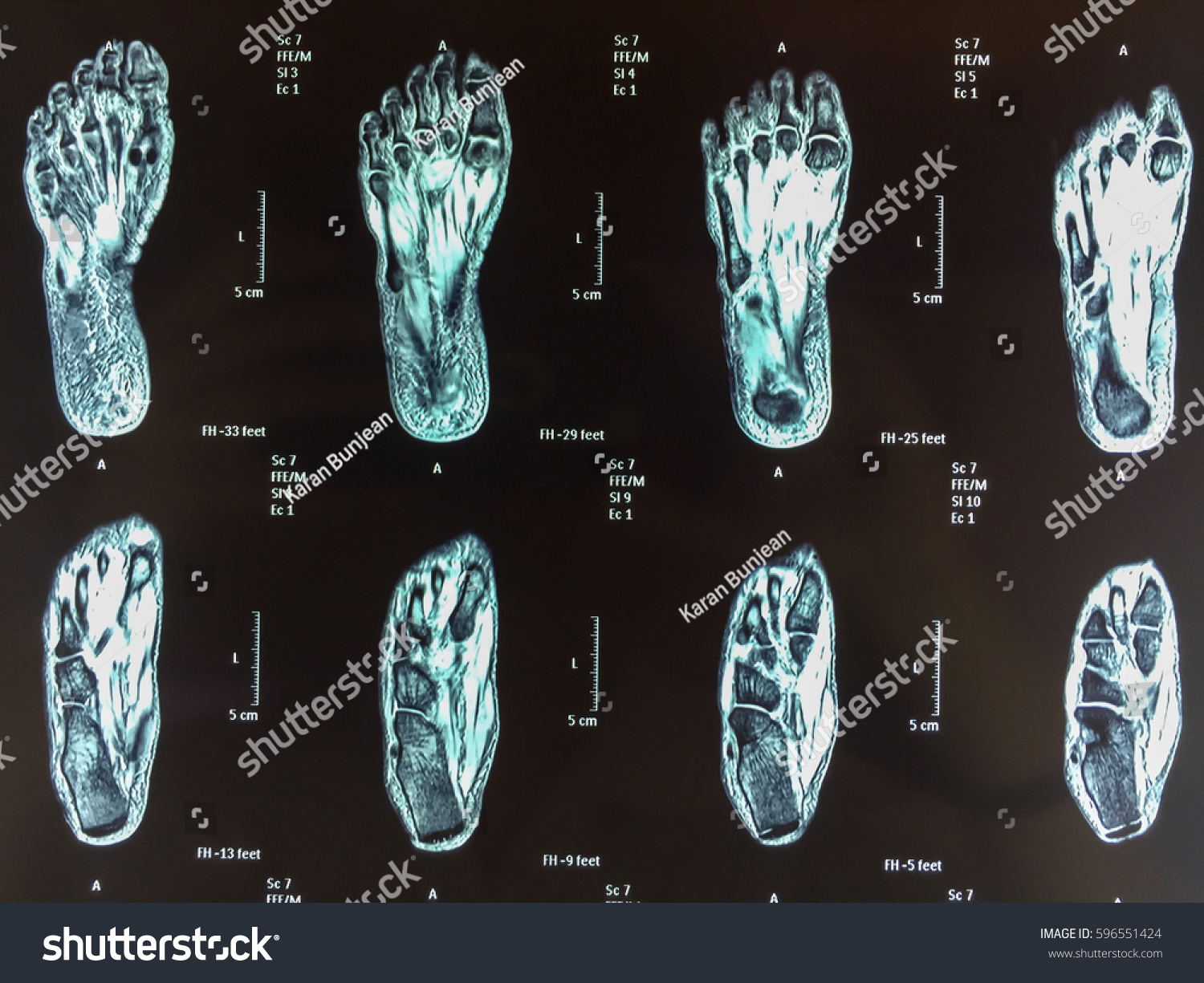 Normal MRI Foot Transverse View Stock Photo (Royalty Free) 596551424 ...
