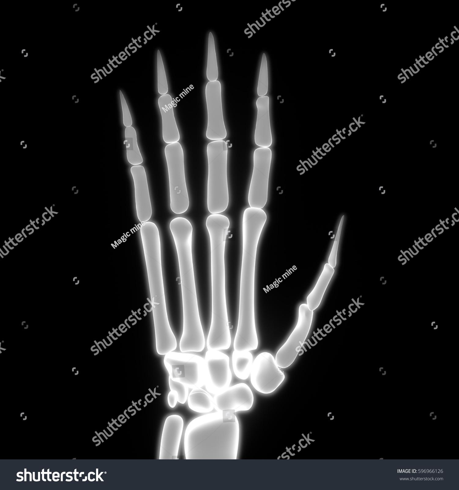 Human Body Bone Joint Pains Anatomy Stock Illustration 596966126 ...