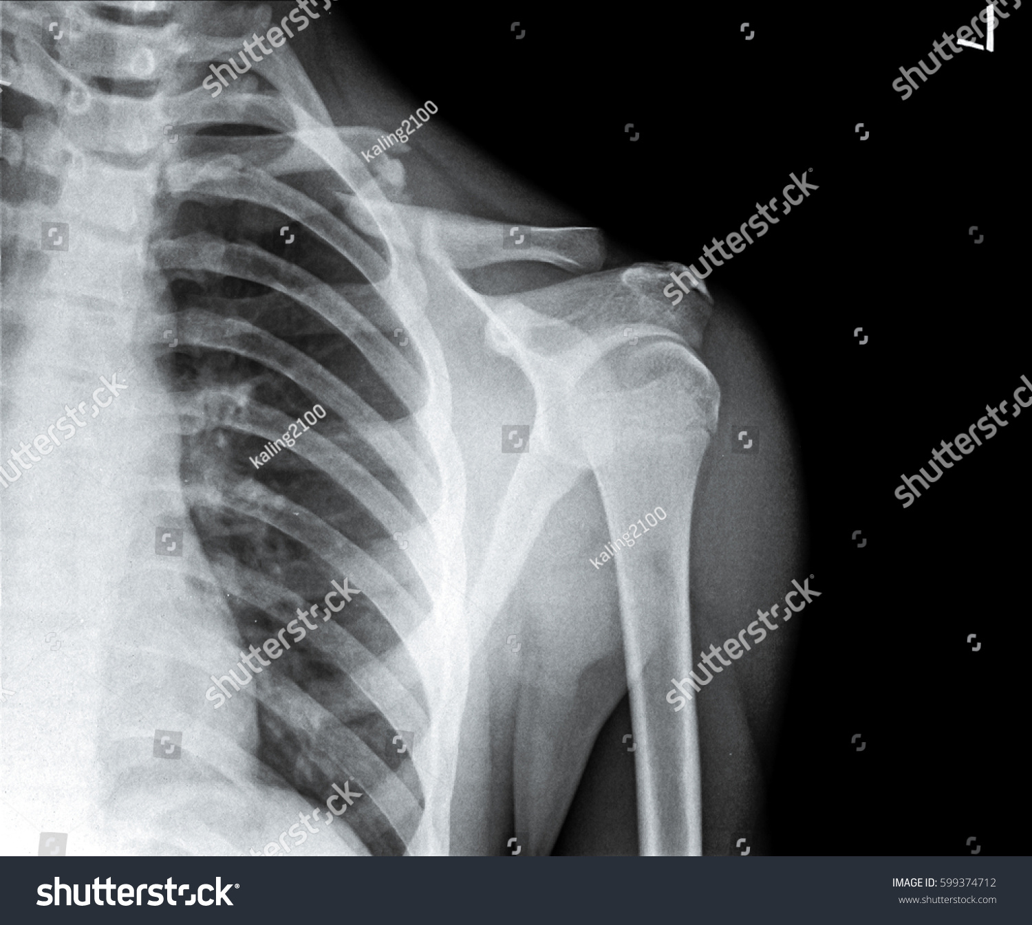 left clavicle x ray - photo #15