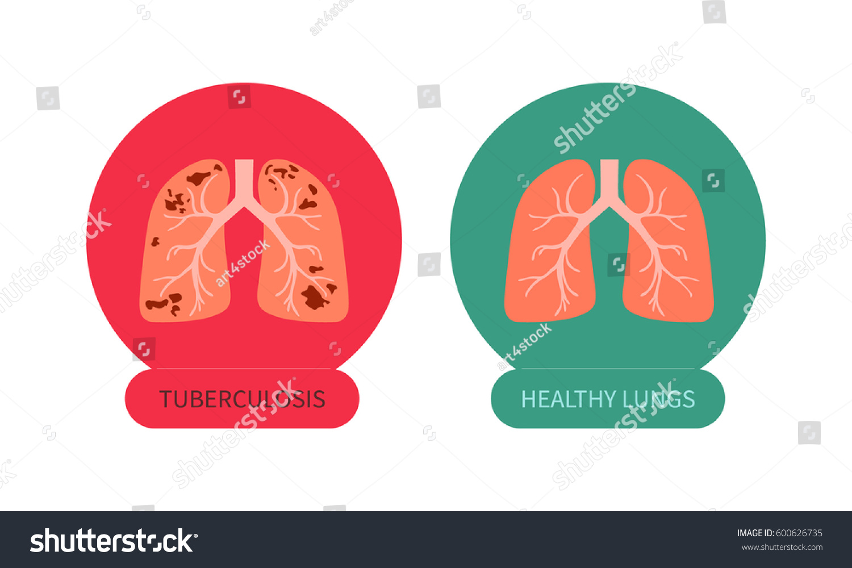 Tuberculosis Versus Healthy Lungs Symbol Tb Stock Vector Royalty