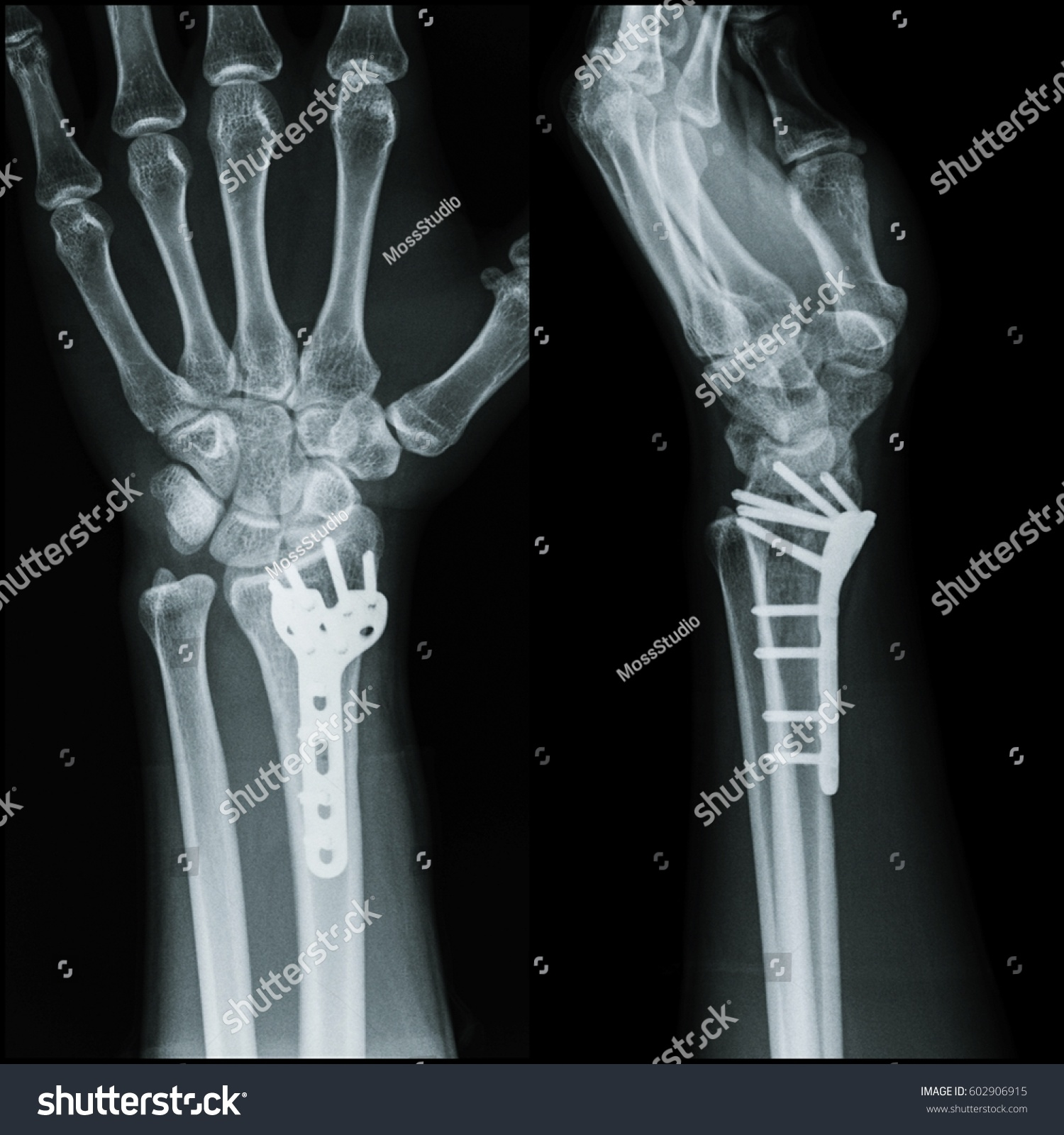 Royalty-free Film x-ray wrist (AP,Lateral view) : … #602906915 Stock ...