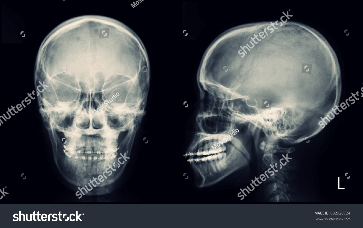 Film Xray Skull AP Lateral View Stock Photo (Edit Now) 602920724 ...