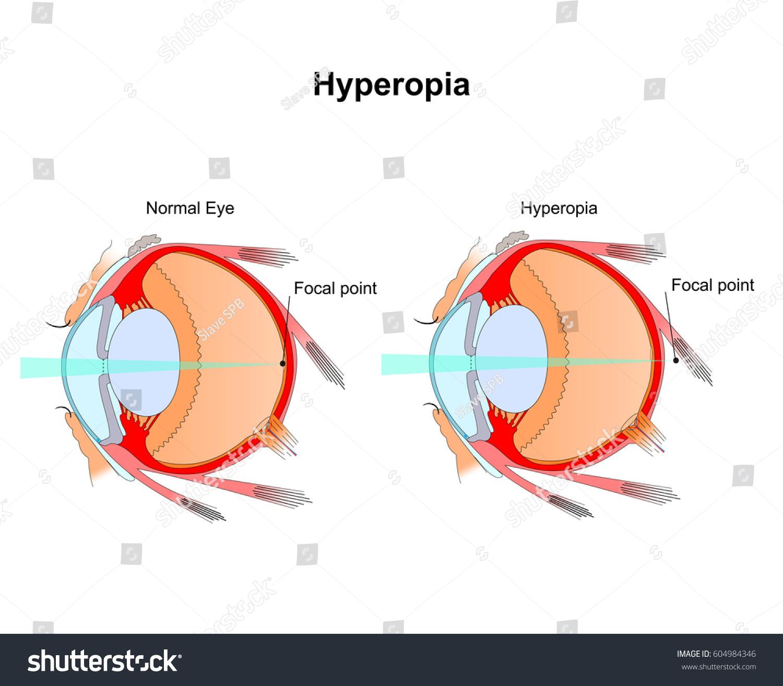 Hyperopia Eye Vision Disorderdiagram Eye Stock Vector