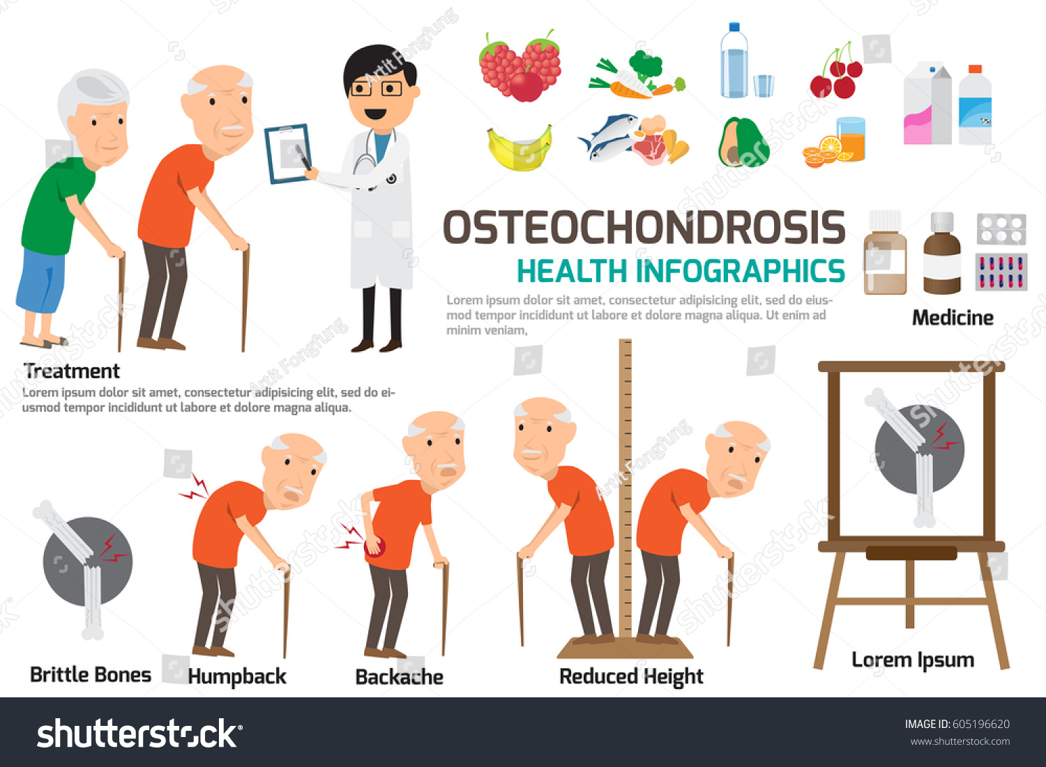 Headache with osteochondrosis: causes, symptoms and treatment. How to relieve the headache with cervical osteochondrosis