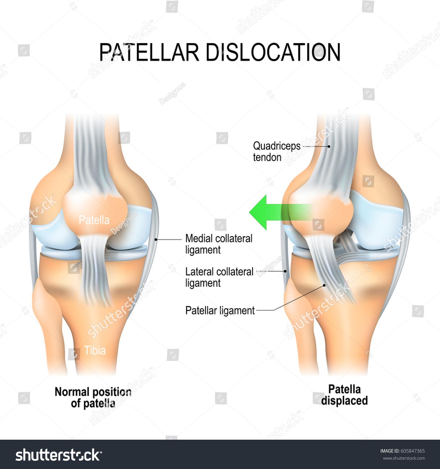 Patellar Dislocation Normal Position Kneecap Patella Stockvector ...