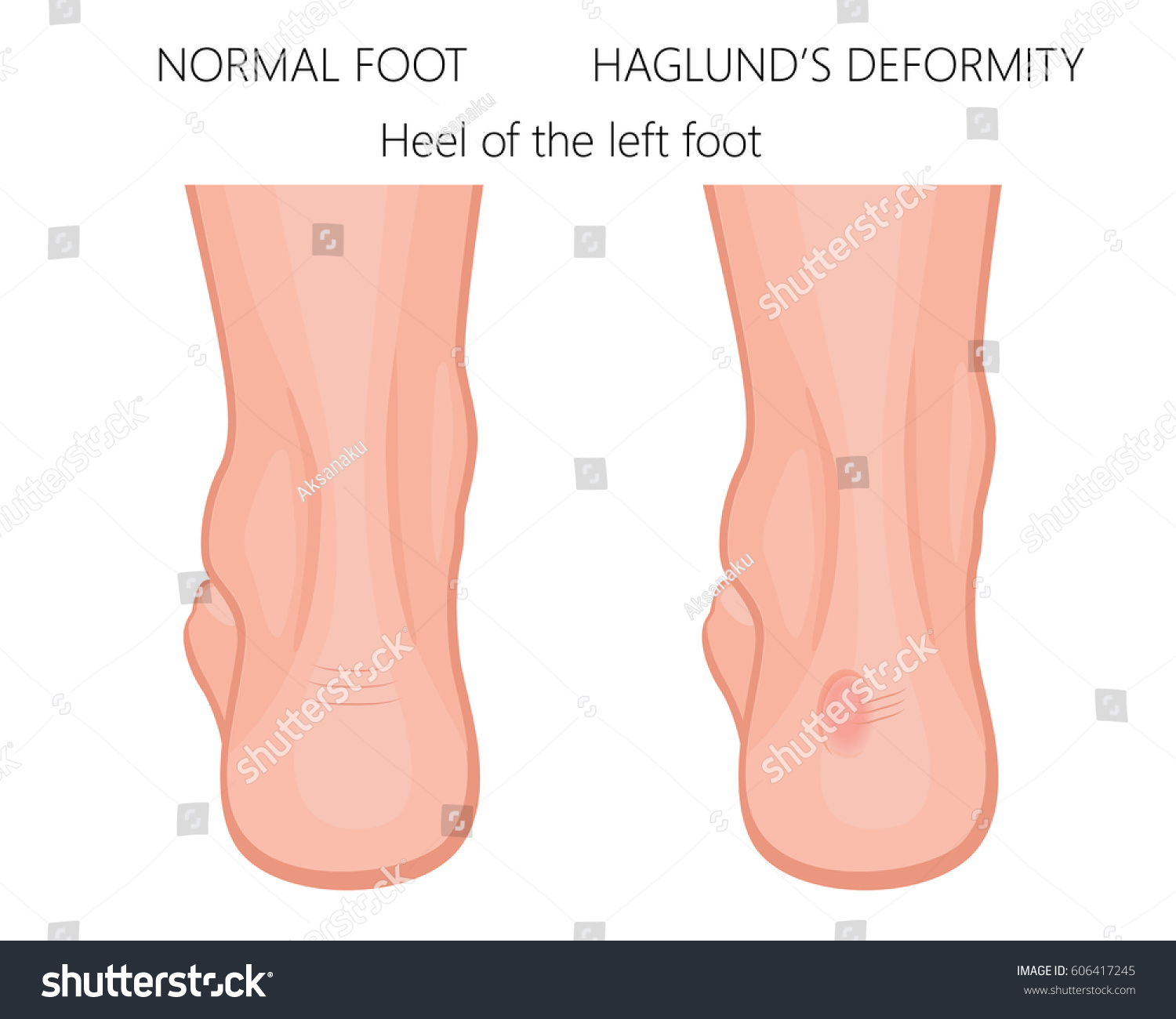 Vector Illustration Foot Normal Heel Foot Stock Vector (2018 ...