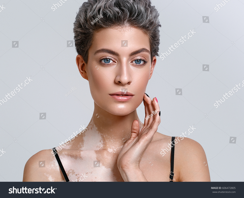 Vitiligo Woman Beauty Portrait Skin Problems Stock Photo Edit Now 606472805