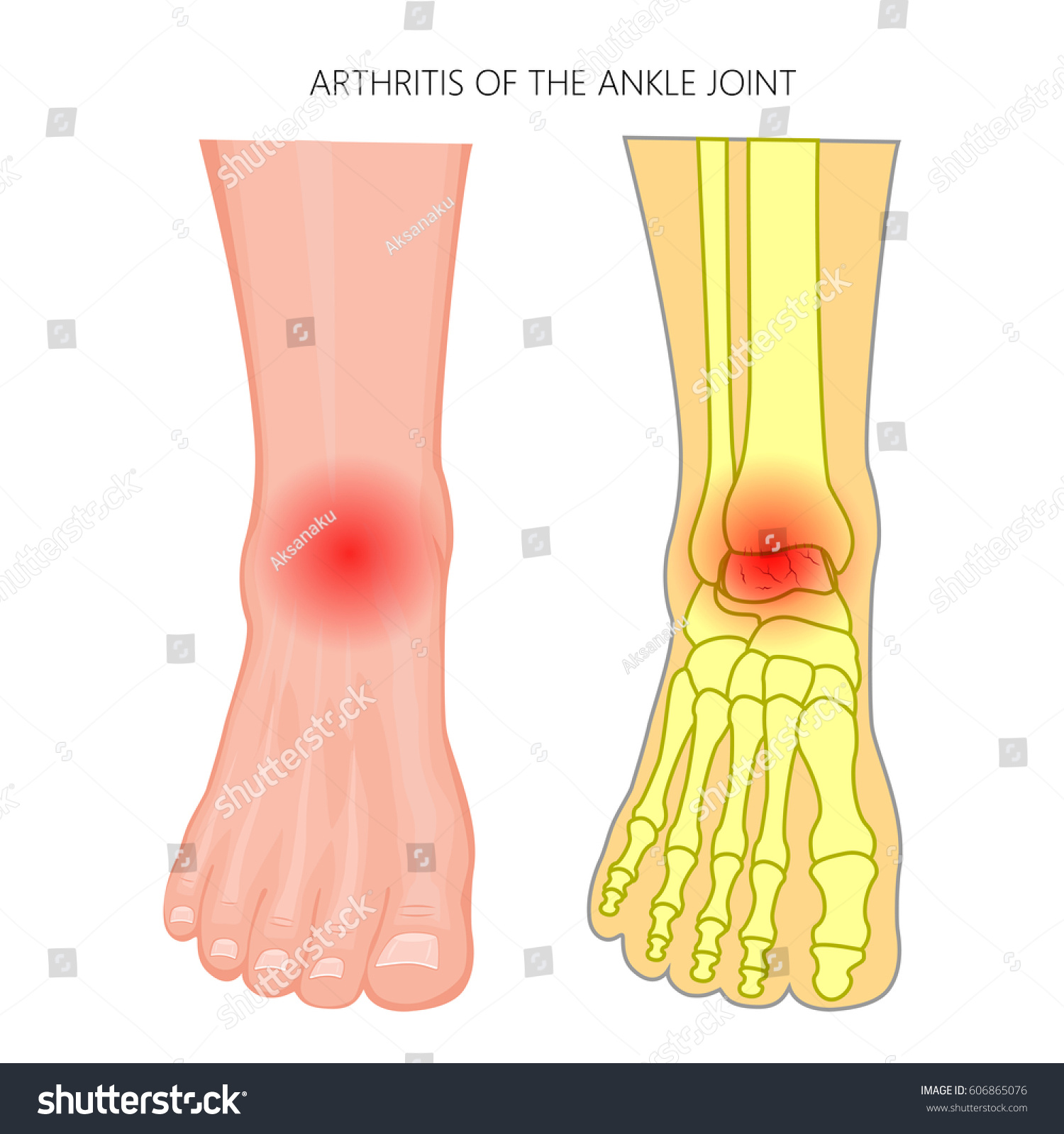 Vector Illustration Arthritis Ankle Joint Front Stock Vektorgrafik