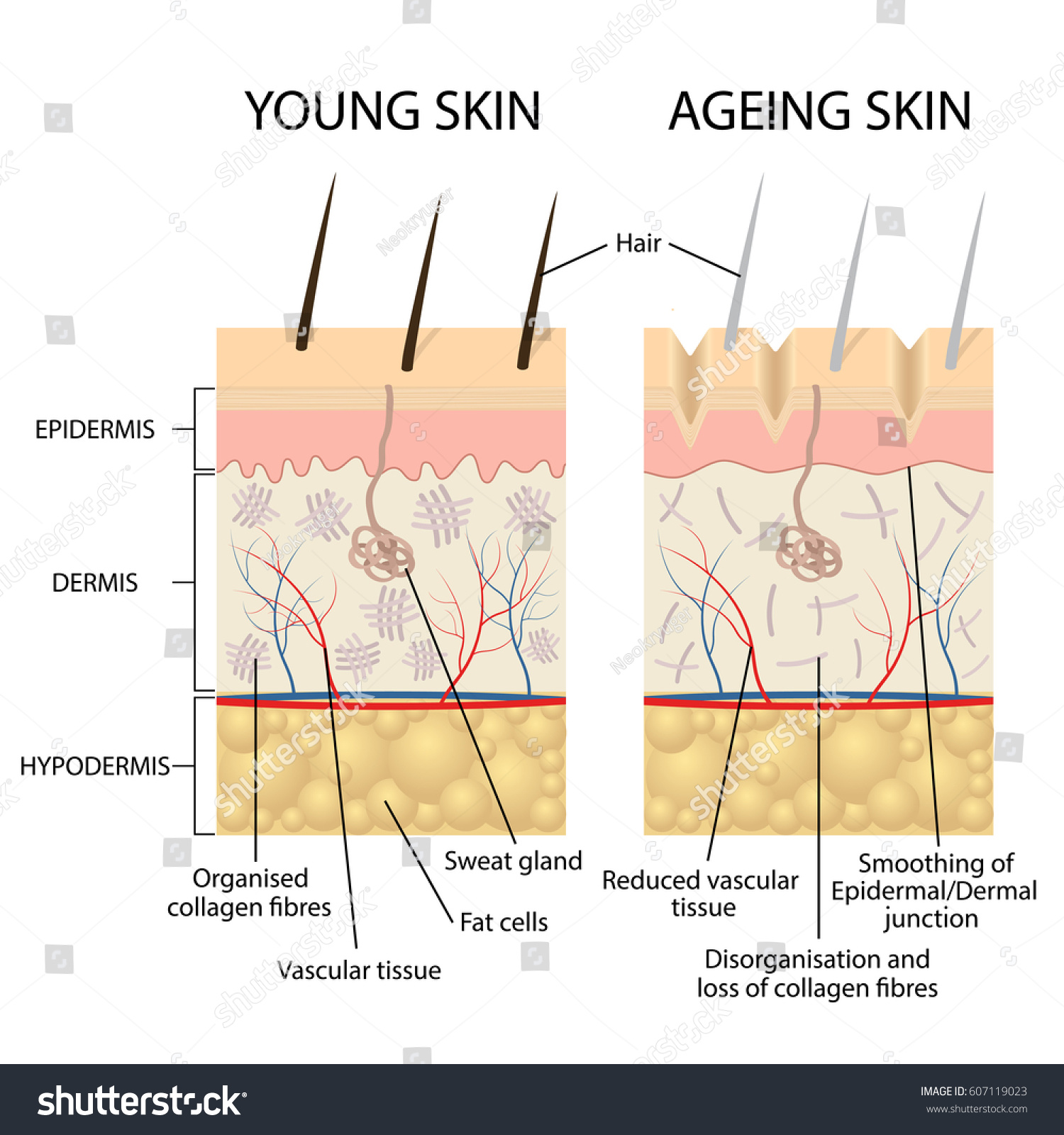 Young healthy skin older skin comparison stock vector 607119023 young healthy skin and older skin comparison skin layers and wrinkles diagram pooptronica Image collections