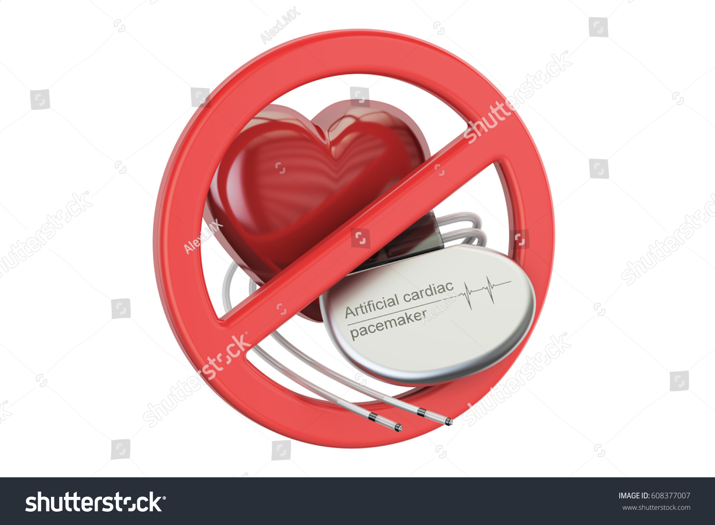 Artificial Cardiac Pacemaker Forbidden Sign 3 D Stock Illustration