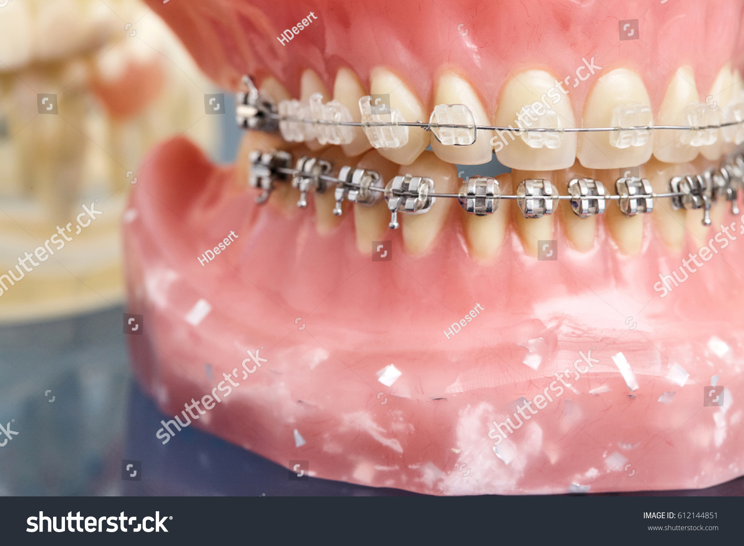 Human Jaw Teeth Model Metal Wired Stock Photo (Edit Now) 612144851 ...