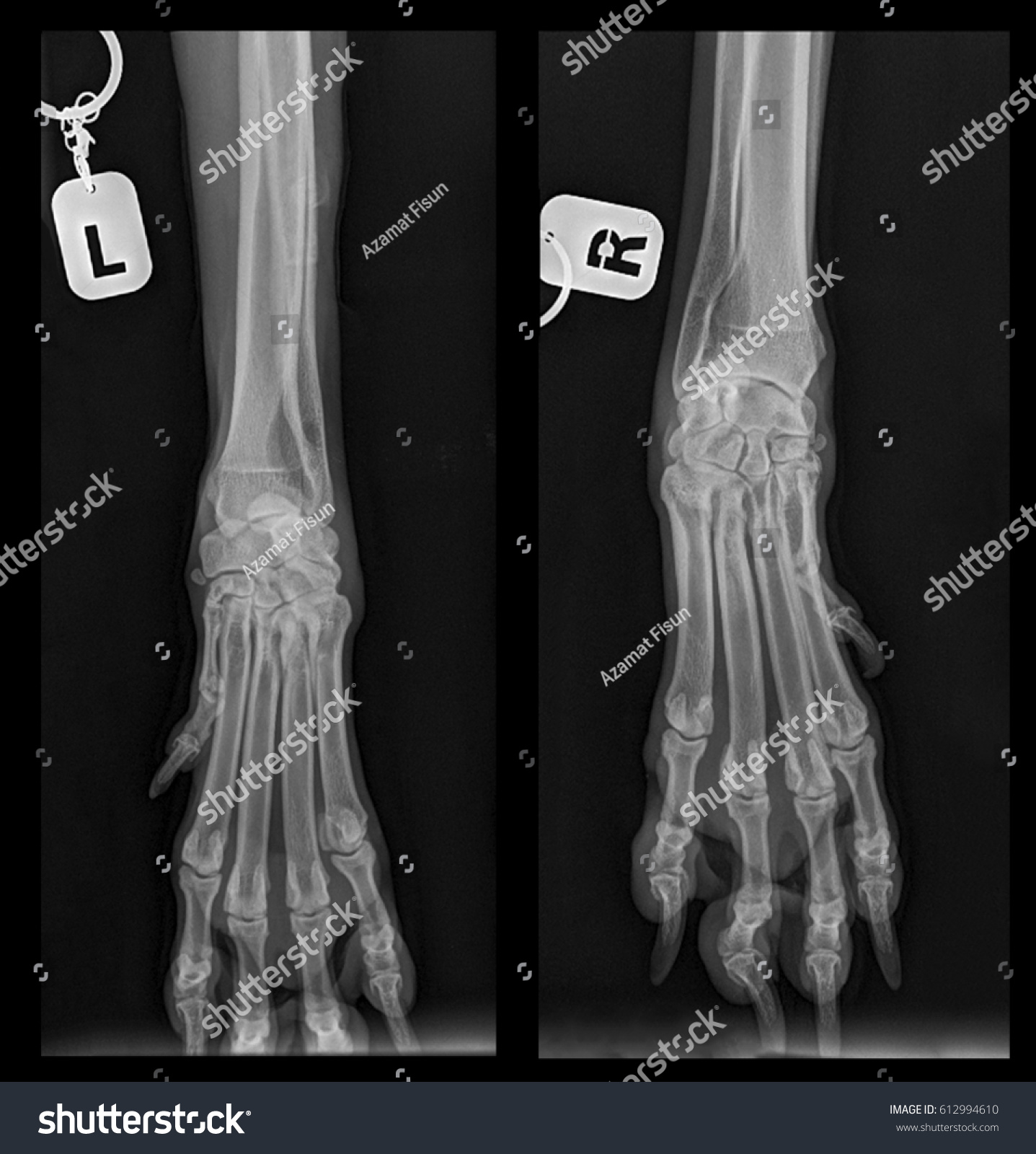 Xray Picture Dog Dogs Paws Joints Stock Illustration 612994610 ...