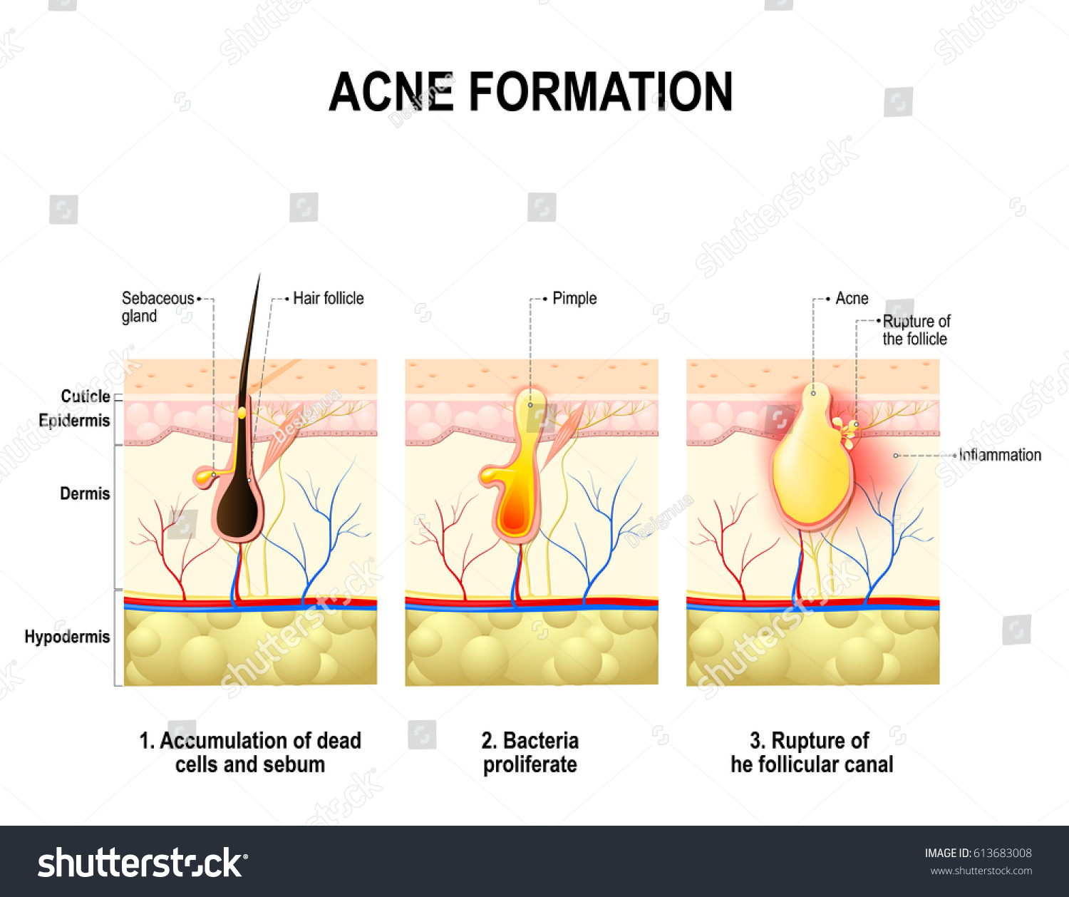 Three stages acne formation human skin stock illustration three stages of the acne formation in the human skin the sebum in the clogged pooptronica