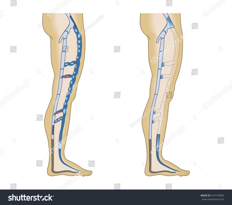 Illustration Leg Veins On White Background Stock Illustration ...