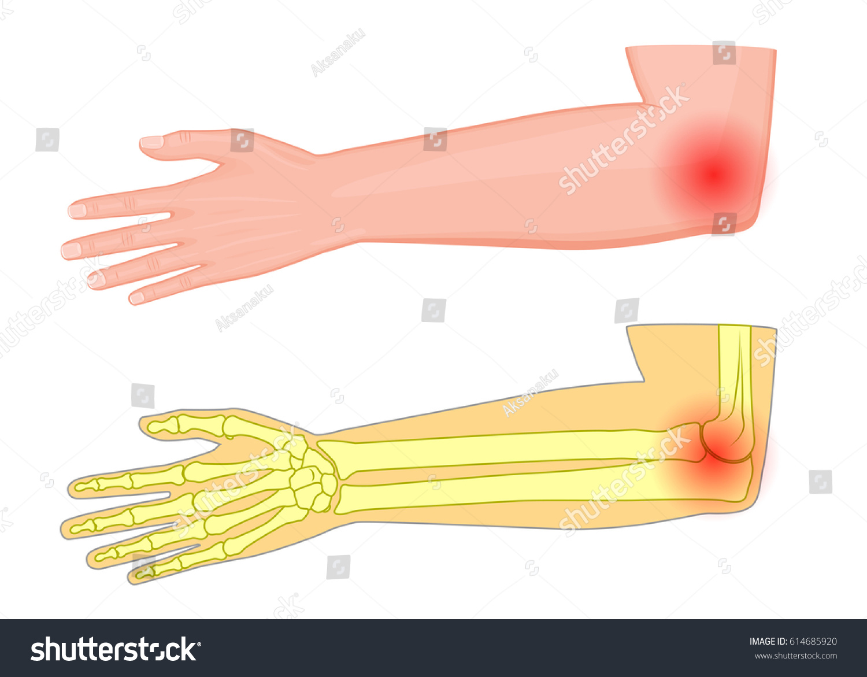 Vector Illustration Human Elbow Joint Pain Stock Vector Royalty