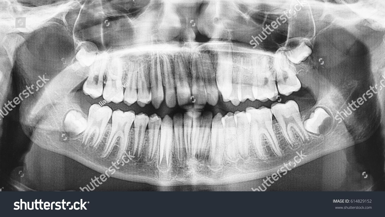Panoramic Dental Xray Child 13 Years Foto de stock (editar ahora ...