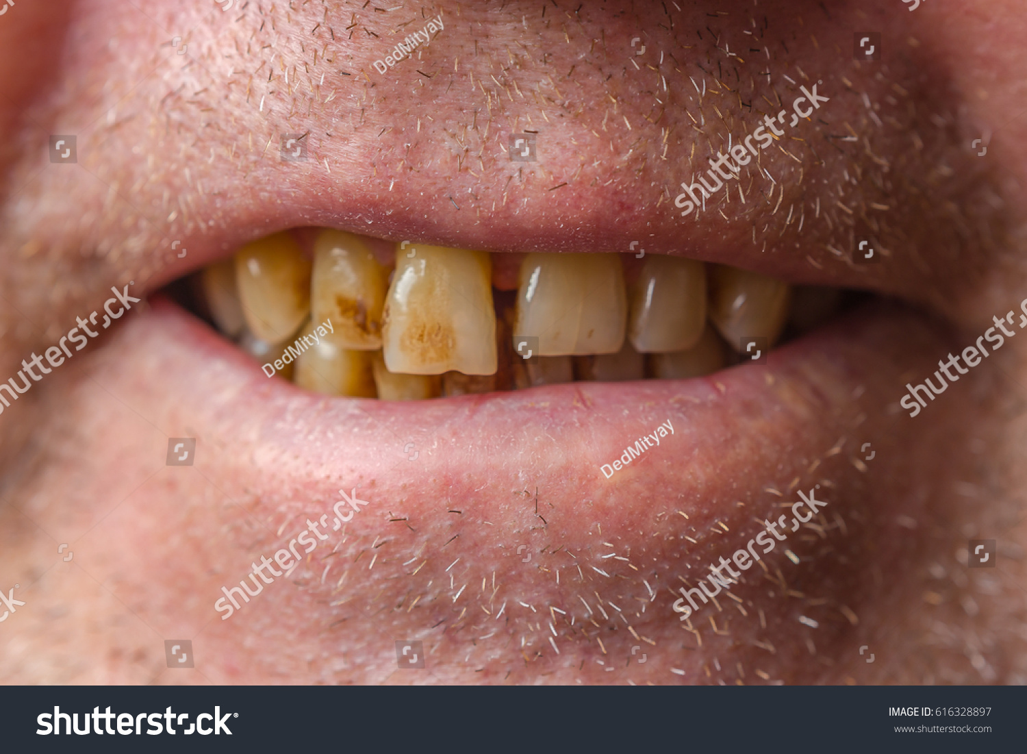 dating someone with crooked teeth My super cute and indie friend shirls actively seeks out people with crooked teeth because she says people with i could go on a date someone with bad teeth.