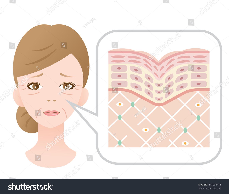 Diagram old skin showing collagen framework stock vector 617034416 diagram of old skin showing the collagen framework is broken and wrinkles appearswoman face pooptronica
