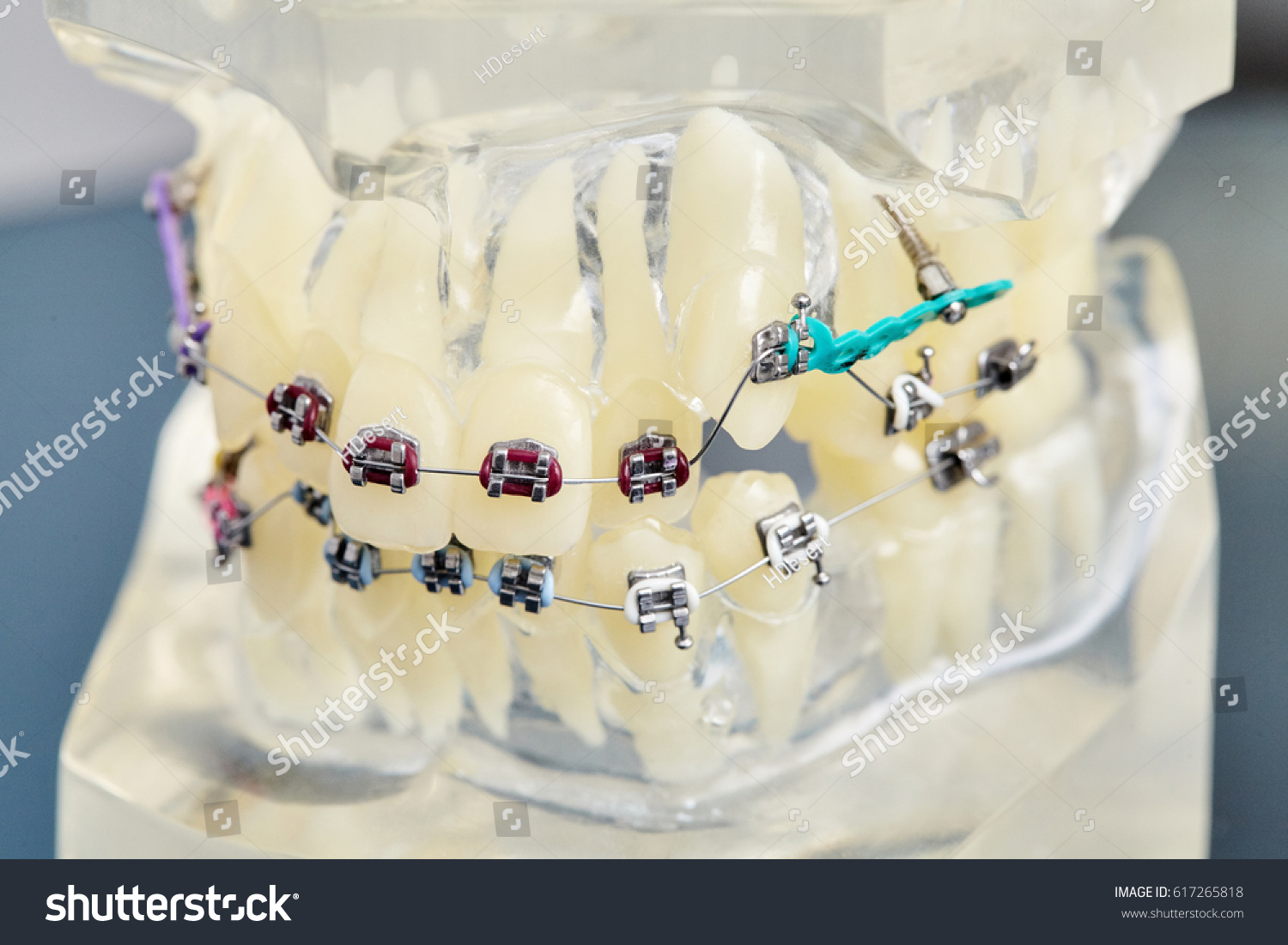 Fancy Braces Wired Shut Mold - Electrical Circuit Diagram Ideas ...