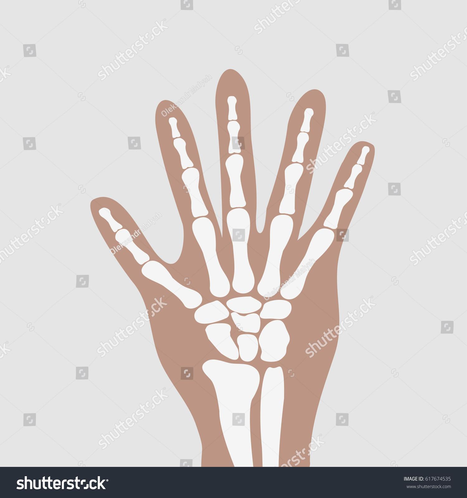 Human Wrist Hands Bones Stock Illustration 617674535 - Shutterstock