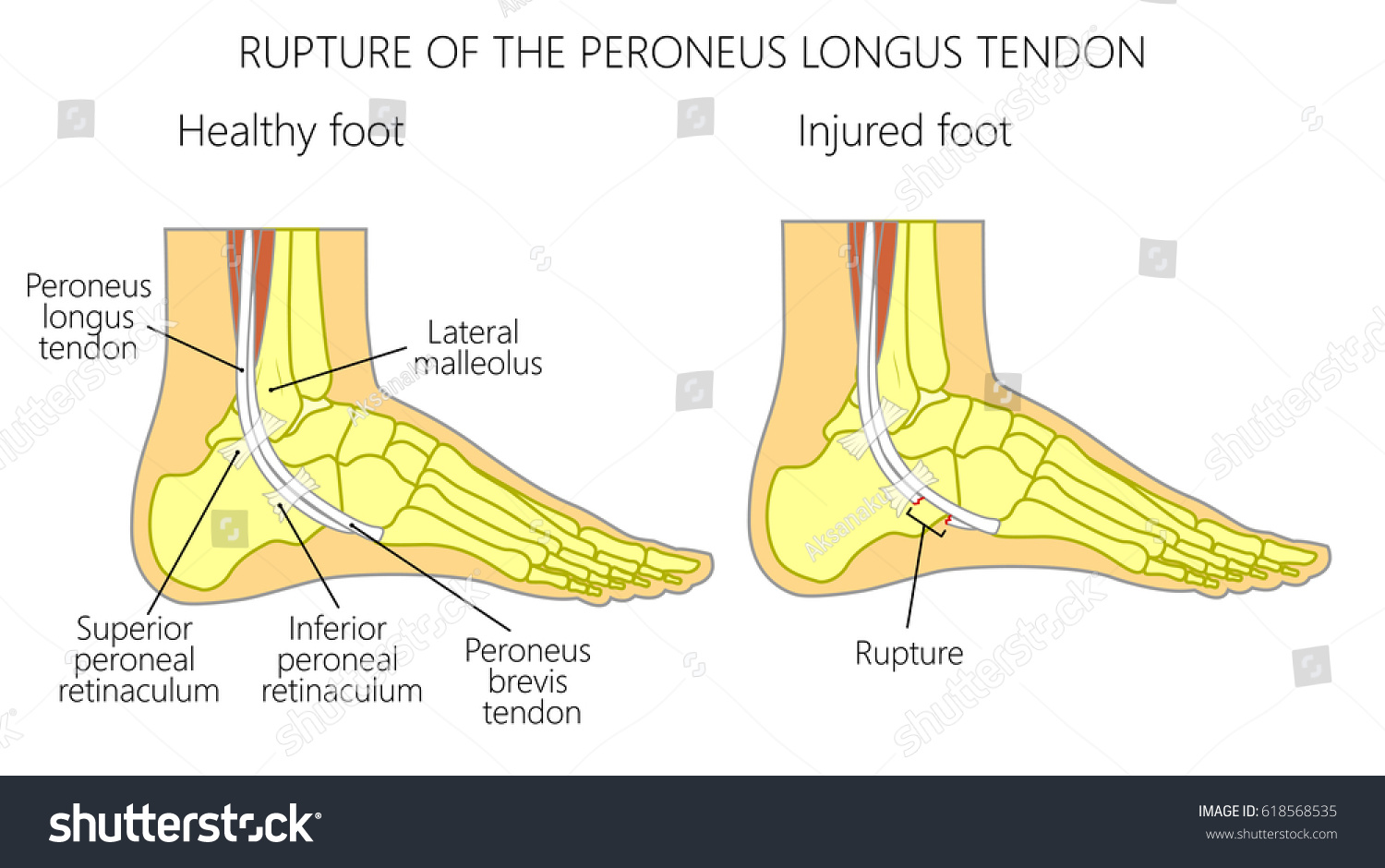 Vector Illustration Peroneal Tendon Injuries Rupture Stock Photo