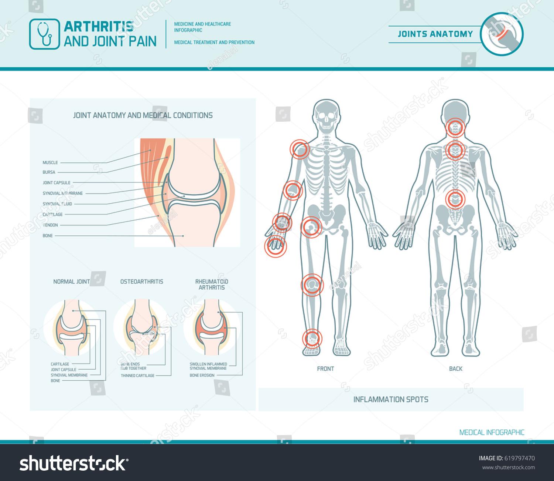 Rheumatoid Arthritis Osteoarthritis Joint Pain Infographic Stock ...