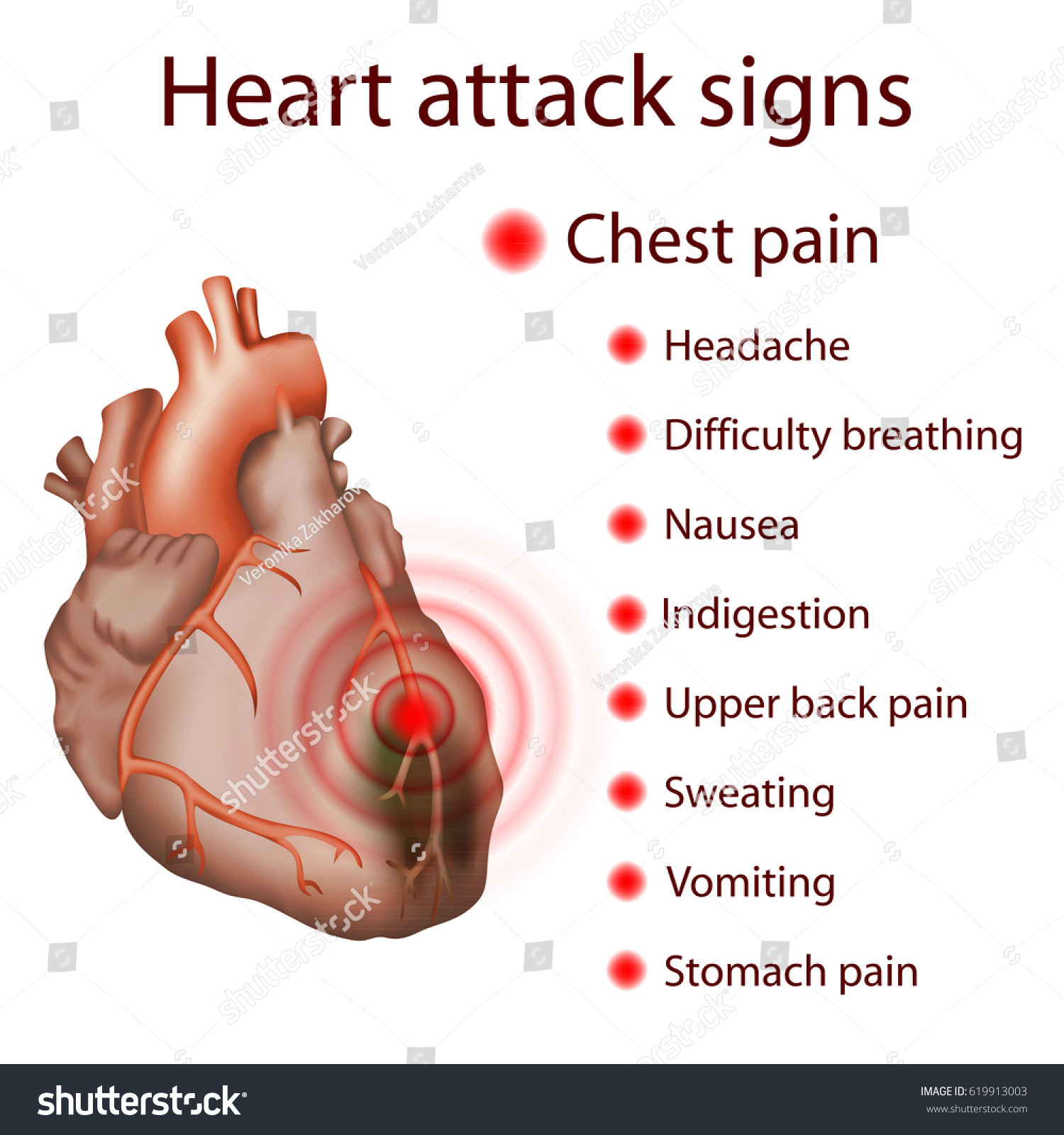 Heart Attack Signs Symptoms Myocardial Infarction Stock Vector ...
