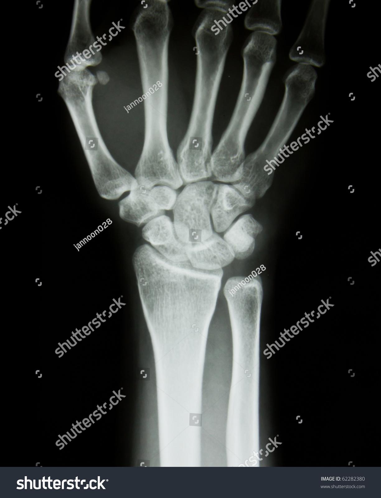 xray human hand wrist stock photo 62282380 shutterstock