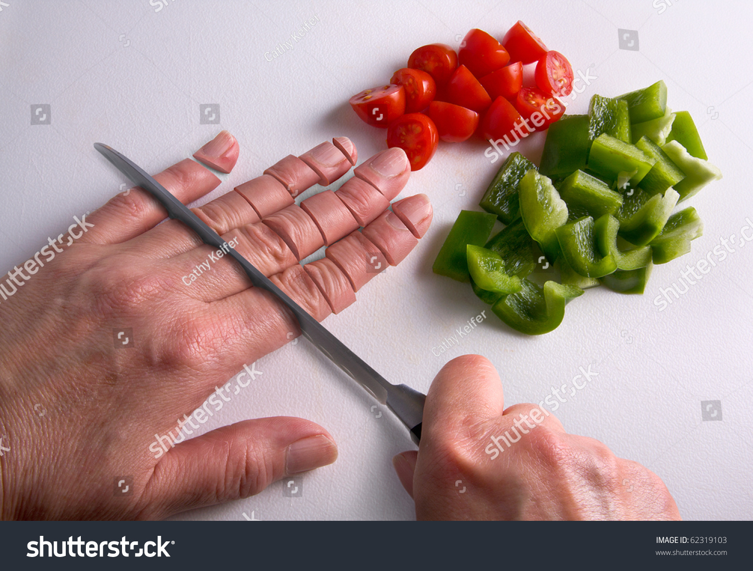 A Human Hand Is Being Chopped With A Knife On A Cutting ...