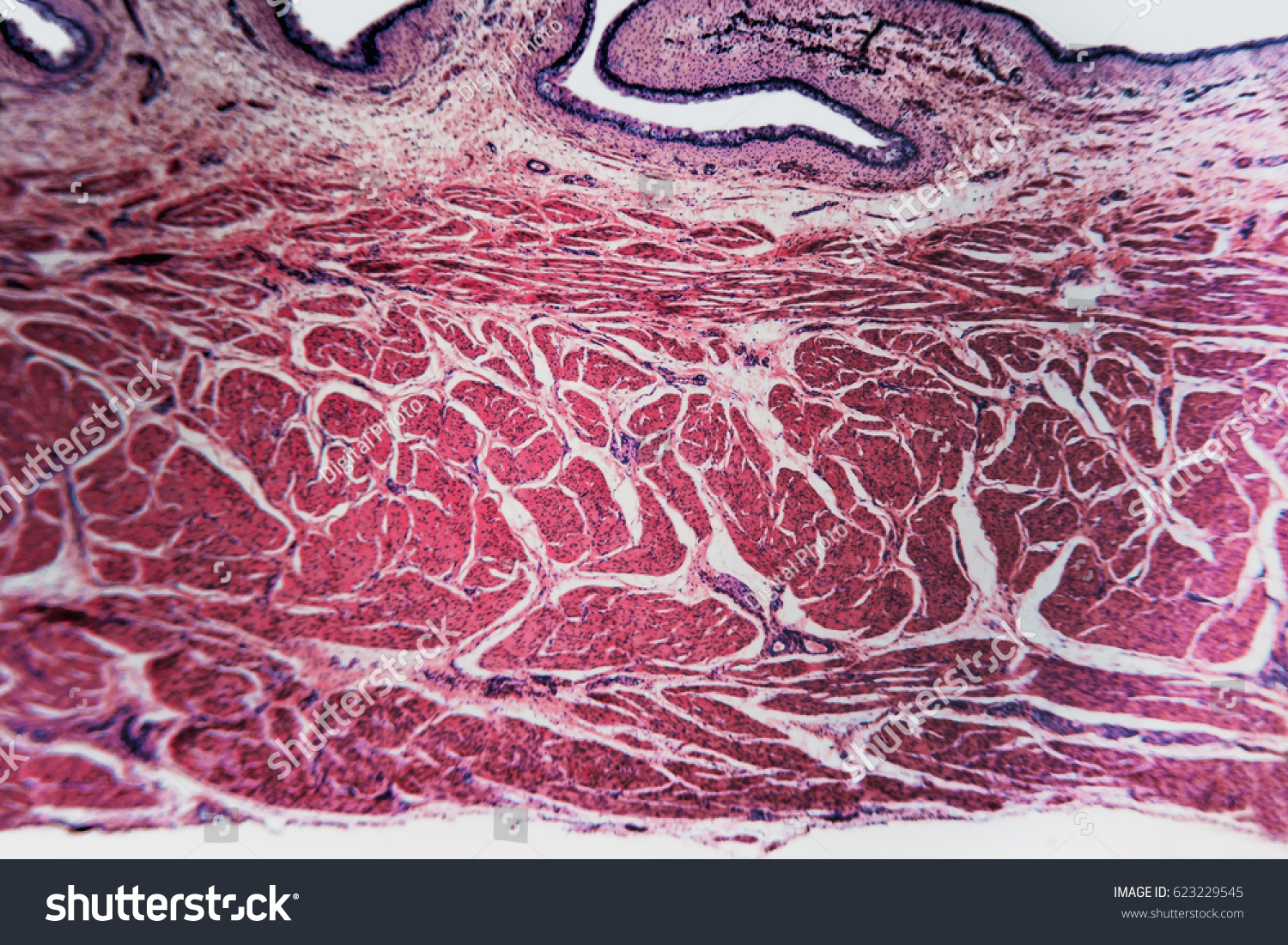 Medical Anatomy Bladder Cat Cells Abstract Stock Photo (Edit Now ...