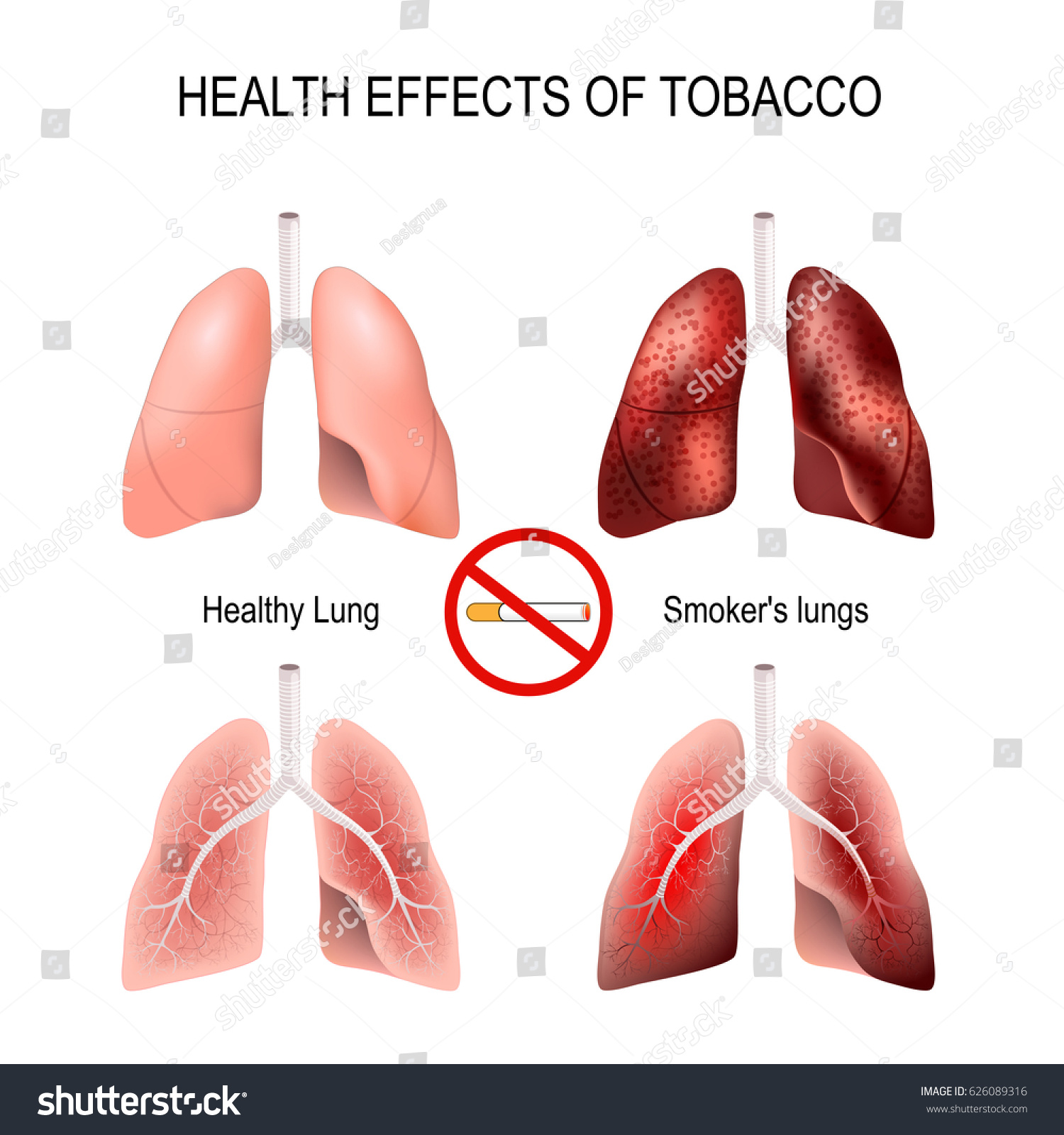 effects of smoking on health Although they aren't addressed very often, the effects of smoking on teeth and the oral cavity are important in the process of quitting.