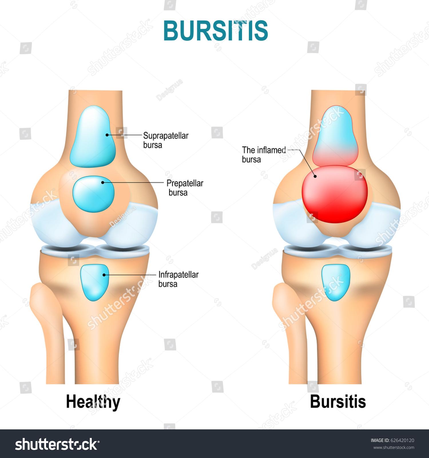 Bursitis healthy humans knee knee inflammation stock illustration bursitis healthy humans knee and knee with inflammation of bursae synovial fluid ccuart Choice Image