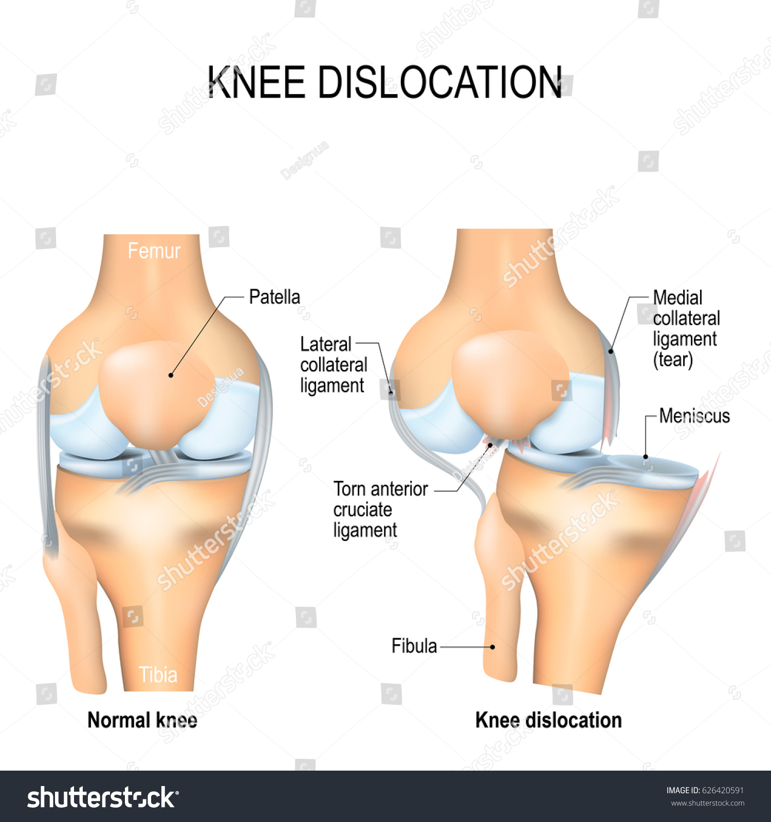 Knee Dislocation Normal Lateral Trauma Knee Stockillustration