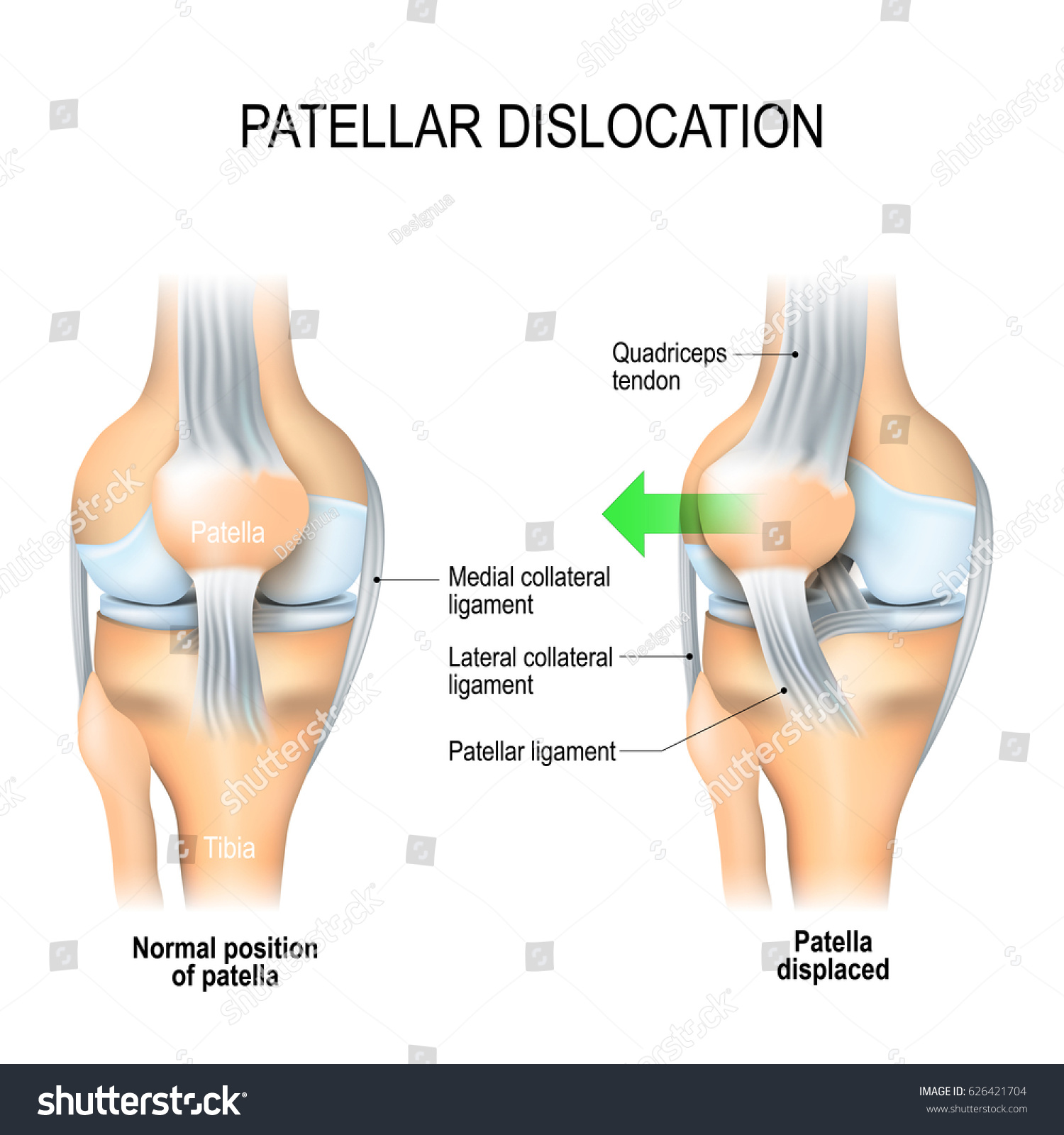 Patellar Dislocation Normal Position Kneecap Patella Stock ...