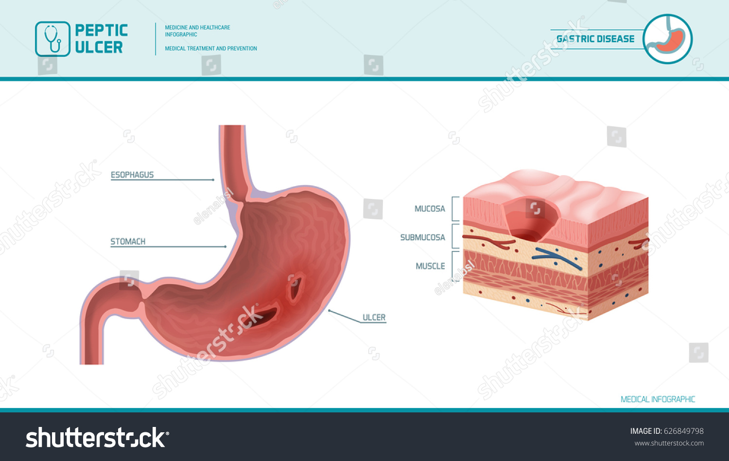 Stomach Peptic Ulcer Inflamed Sore On Stock Vector Royalty Free