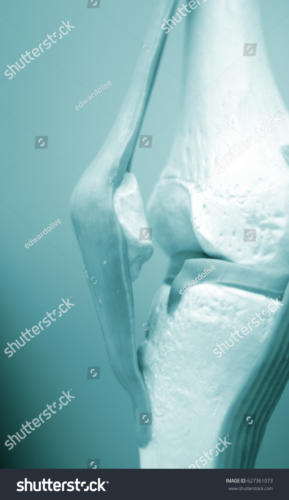 Knee Meniscus Medical Study Student Anatomy Stock Photo (100% Legal ...