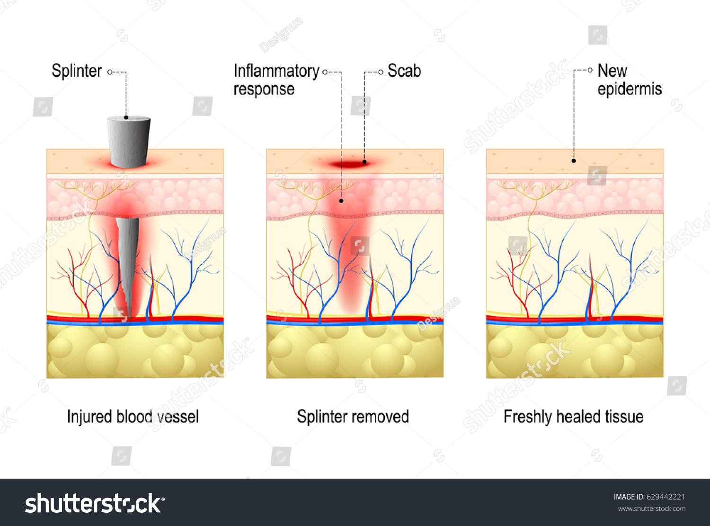 body diagram wound healing wiring diagram database Surgical Wound Healing skin splinter wound healing process body stock vector (royalty free body diagram wound healing