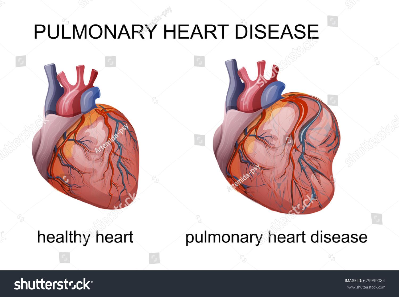 Vector Illustration Pulmonary Heart Disease Cardiology Stock Vector ...