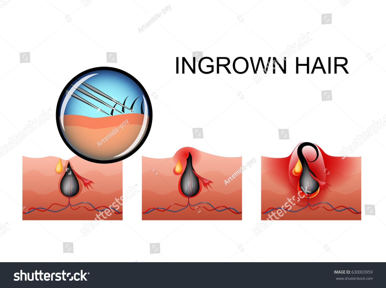 Vector illustration ingrown hair maturation pimple stock vector vector illustration of ingrown hair the maturation of the pimple pooptronica Choice Image