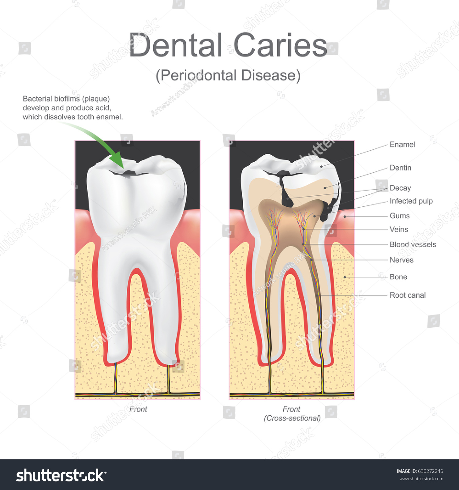 Primary tooth and permanent tooth illustration shows permanent primary tooth and permanent tooth illustration shows permanent tooth located below the deciduous tooth baby teeth are lost due to the pressure of the ccuart Gallery