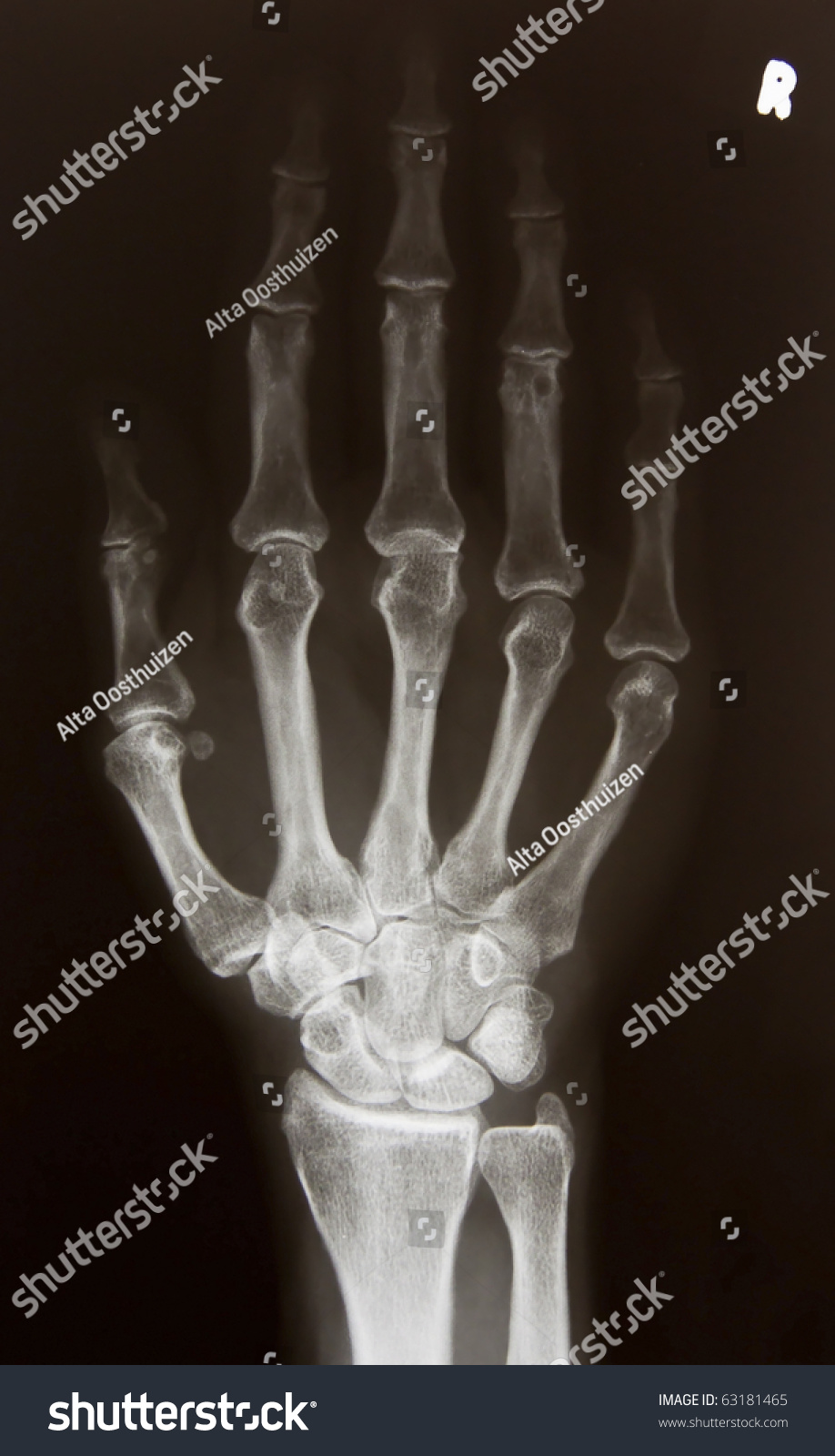 Xray Picture Right Hand Stock Photo (Royalty Free) 63181465 ...
