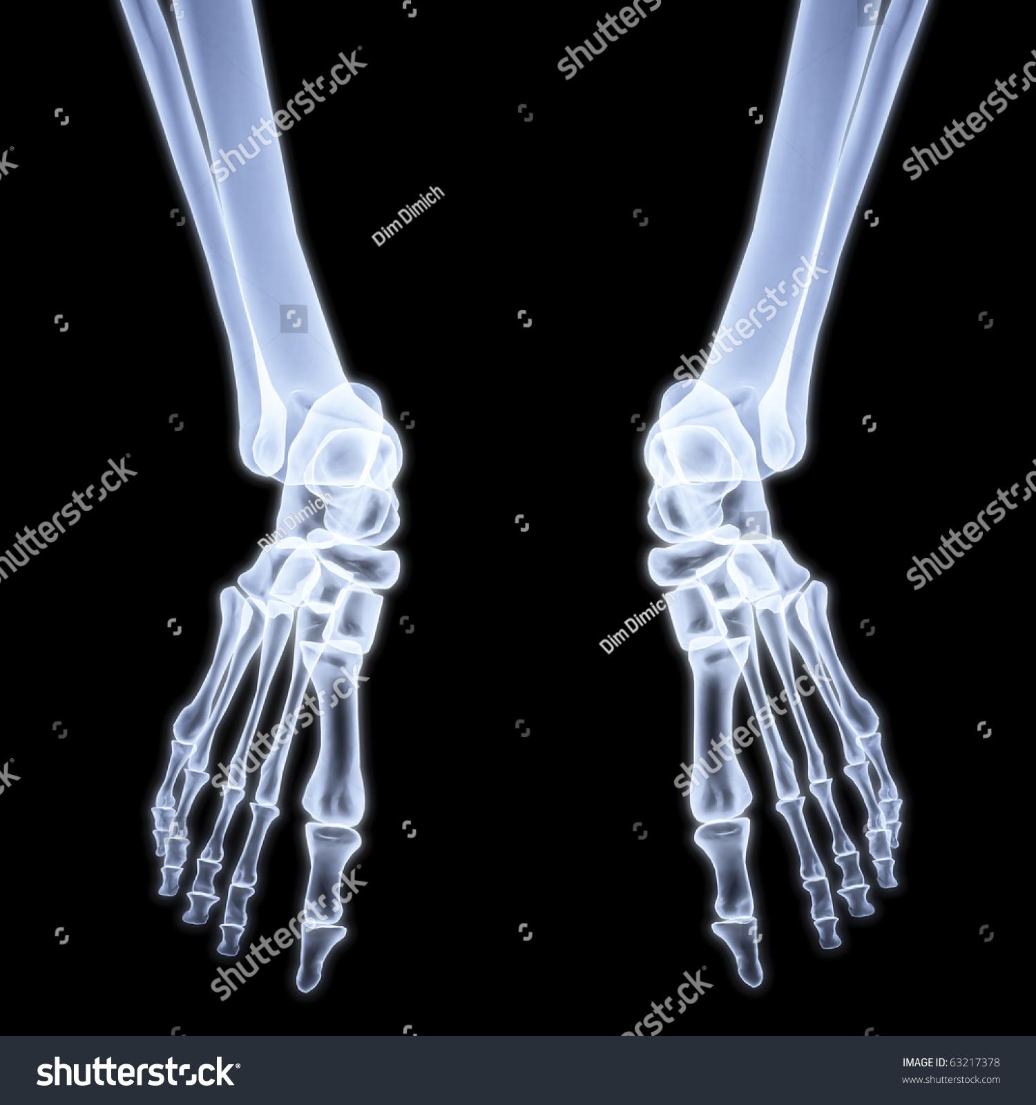 Human Legs Under X-Rays. 3d Image. Stock Photo 63217378 : Shutterstock