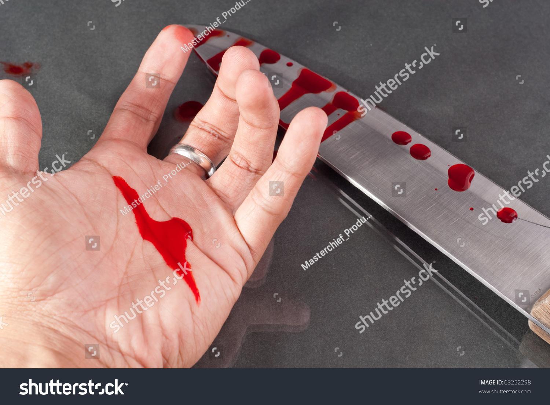 Blood On Hand Stock Photo 63252298 - Shutterstock