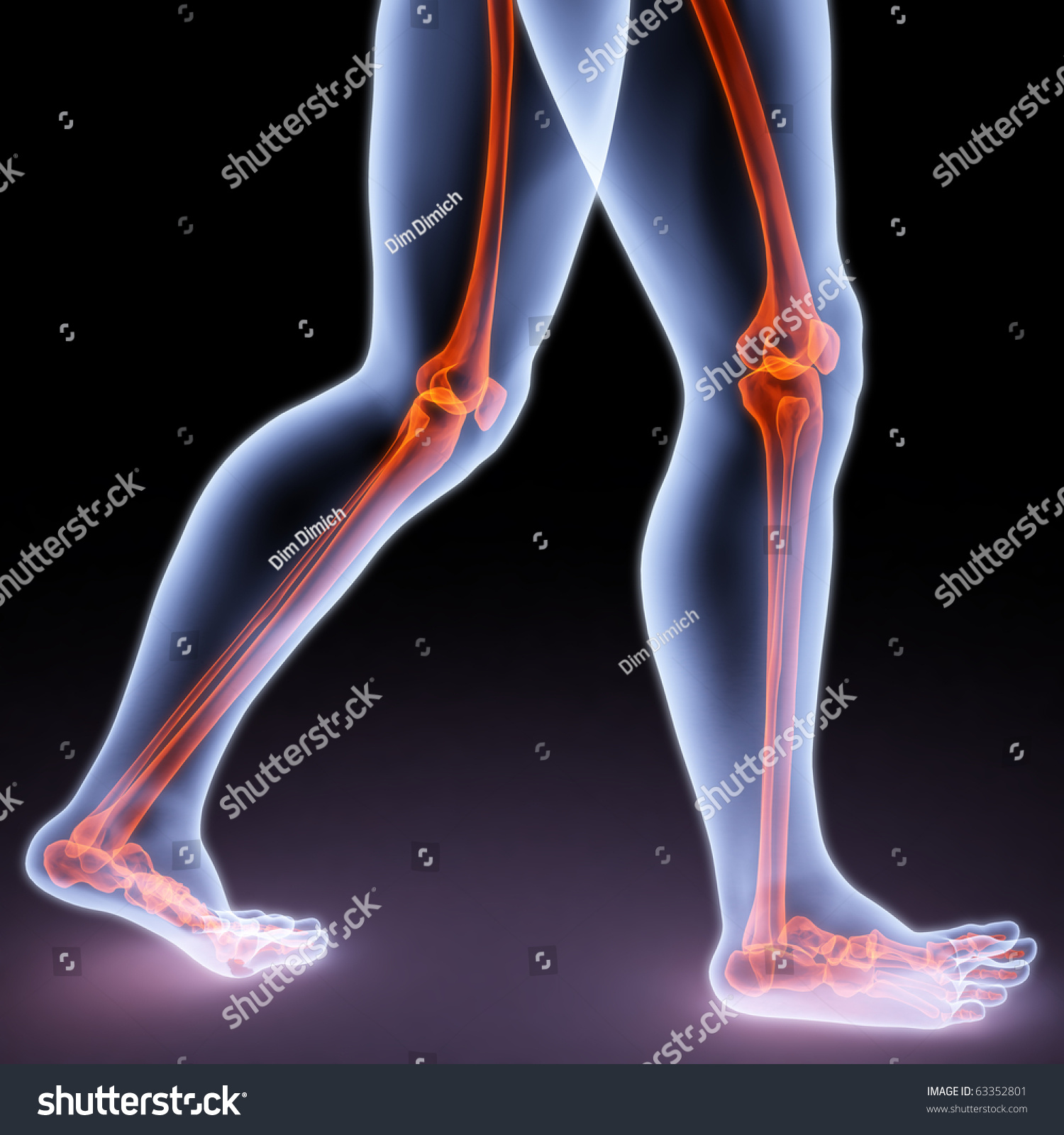 Feet Walking Person Under Xrays Bones Stock Illustration 63352801 ...