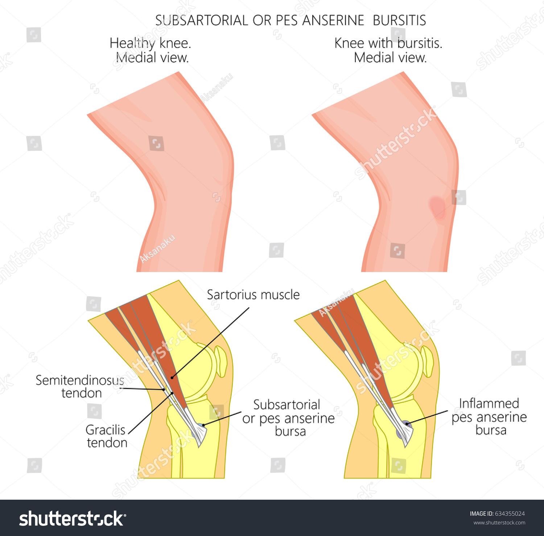 Vector Illustration Healthy Knee Unhealthy Knee Stock Vector Hd